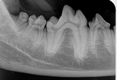 dental rad